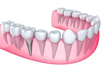 Dental Implants in Payson, AZ